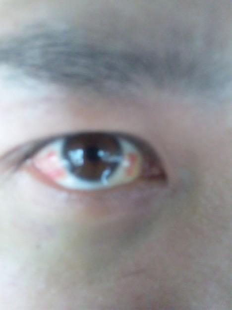 赤い 白目 が